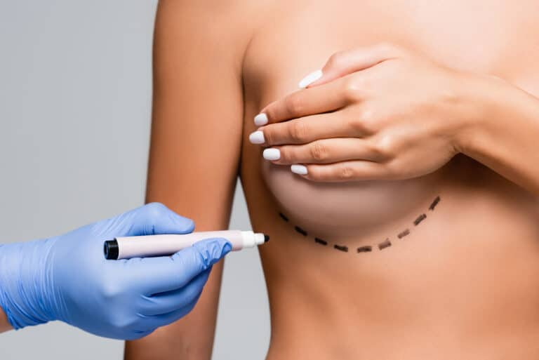 Breastfeeding After Breast Surgery:  Breast Augmentation, Breast Reduction, Breast Biopsy